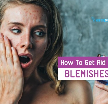 how to get rid of blemishes