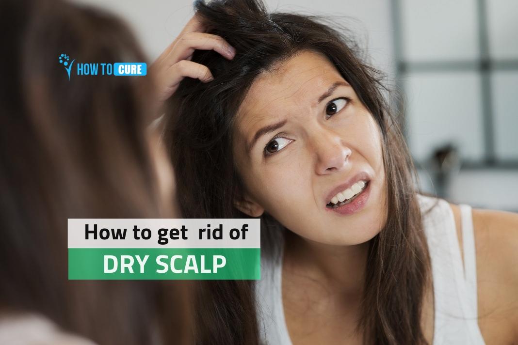 get rid of dry scalp