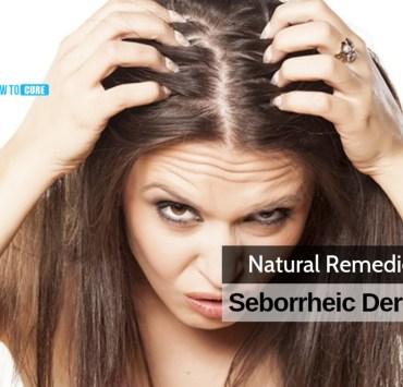 seborrheic dermatitis natural treatment