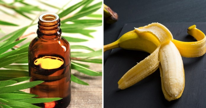 tea tree essential oil and banana peels for warts