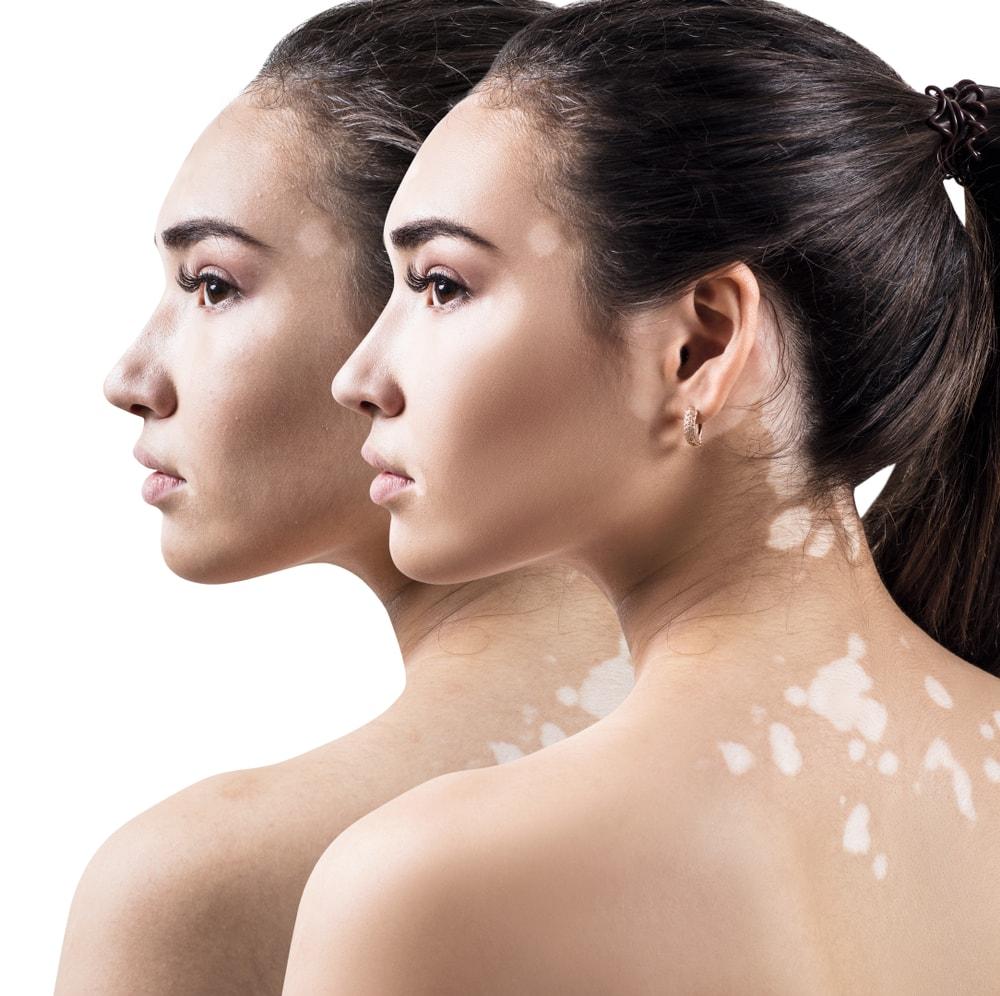 Cure for vitiligo