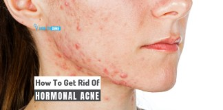 how to get rid of hormonal acne