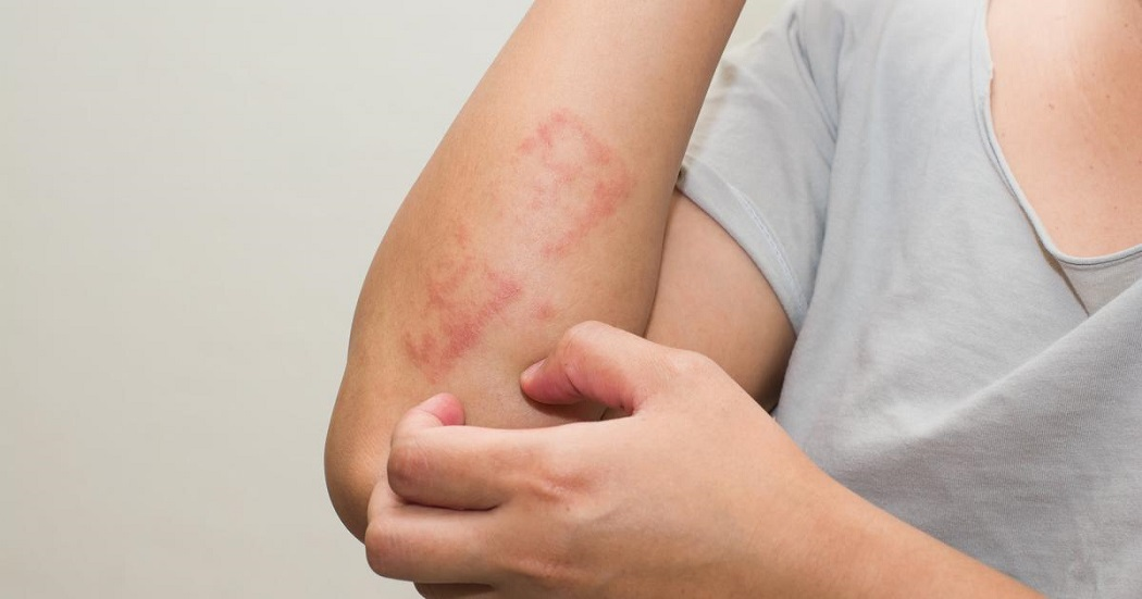 manuka honey benefits for eczema
