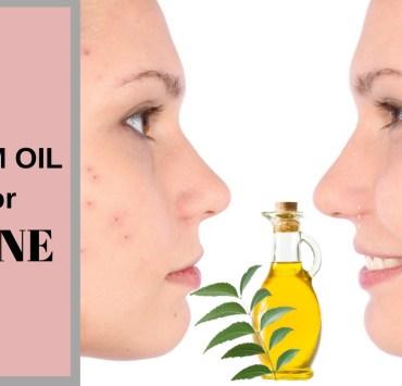neem oil for acne
