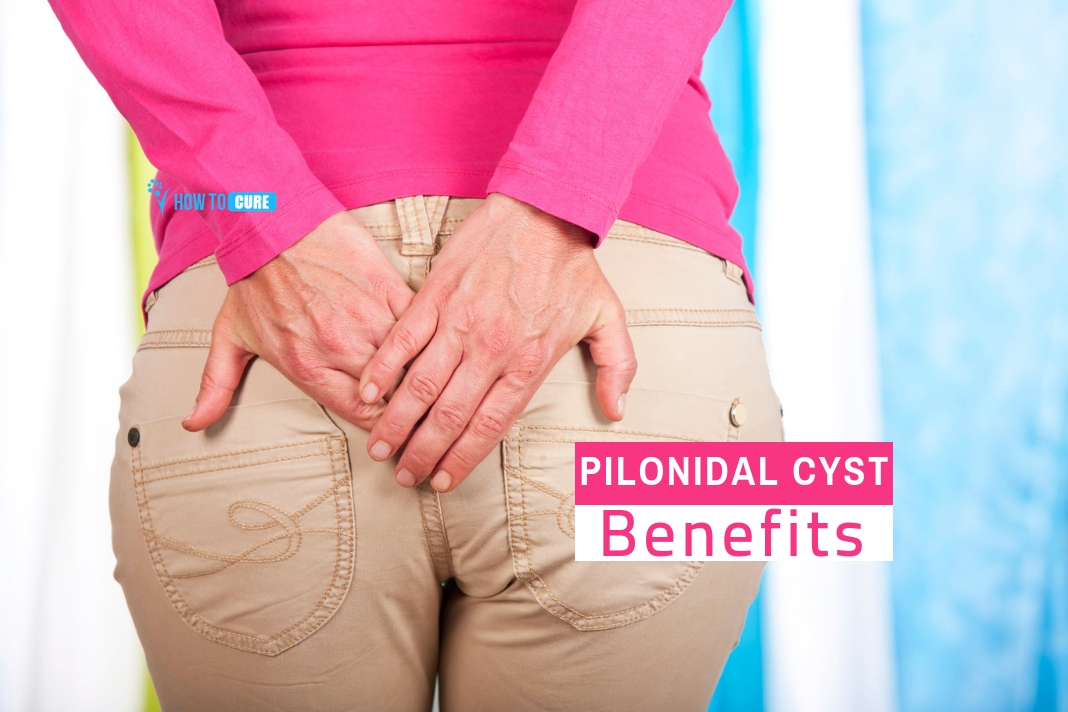 pilonidal cyst home treatment