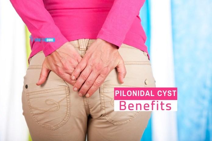 pilonidal cyst home treatment