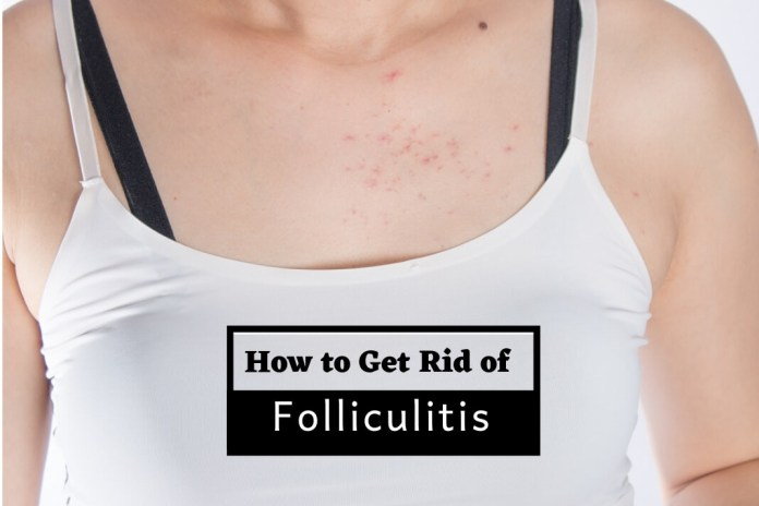 How to Get Rid of Folliculitis