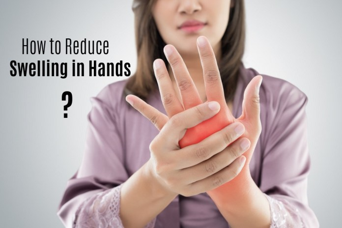How to Reduce swelling in Hands