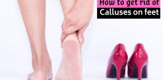 calluses on feet
