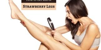 get rid strawberry legs