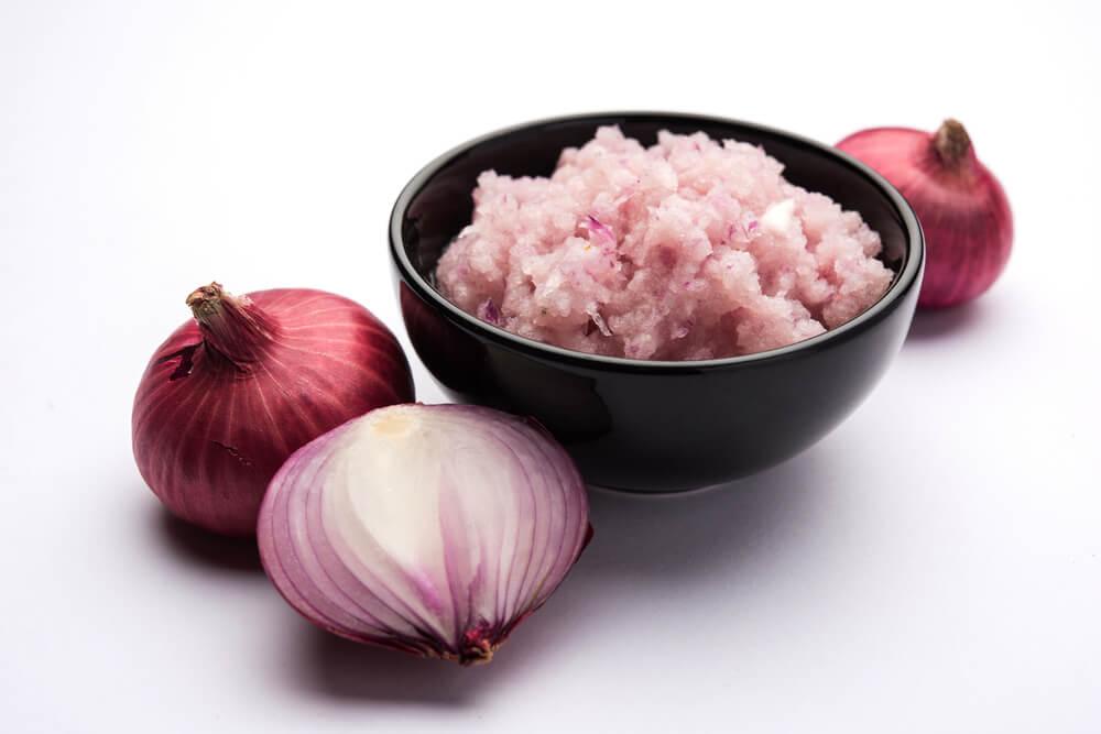 onion paste tinea versicolor
