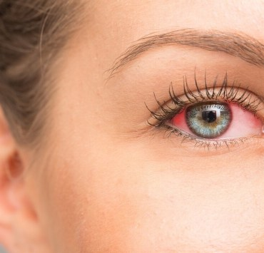 ACV for pink eyes