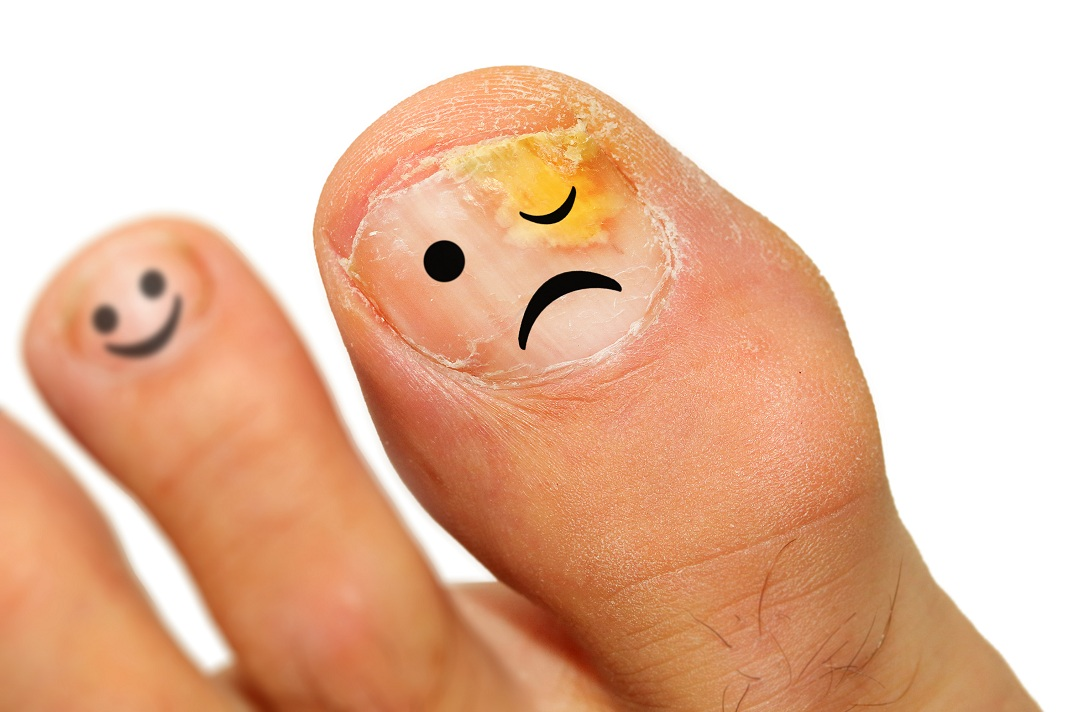 Apple Cider Vinegar for Toenail Fungus - An Effective Cure | How to Cure