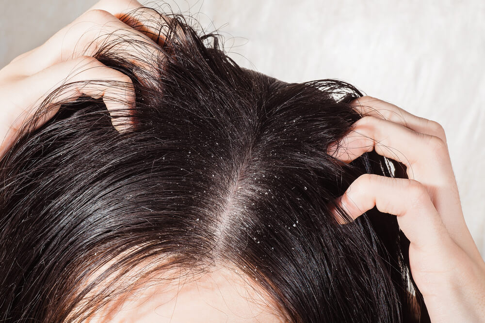 Causes of dandruff