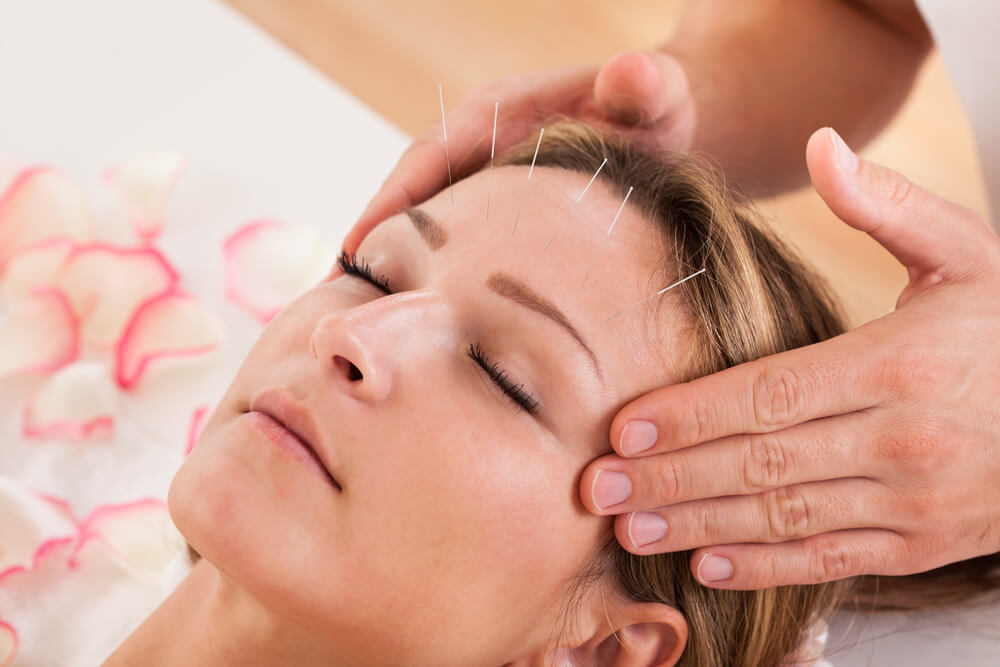 treat headaches with acupuncture