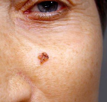 oregano oil for warts