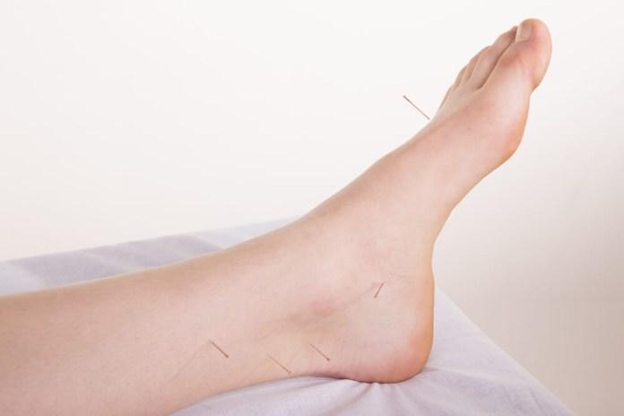 Acupuncture Help Plantar Fasciitis