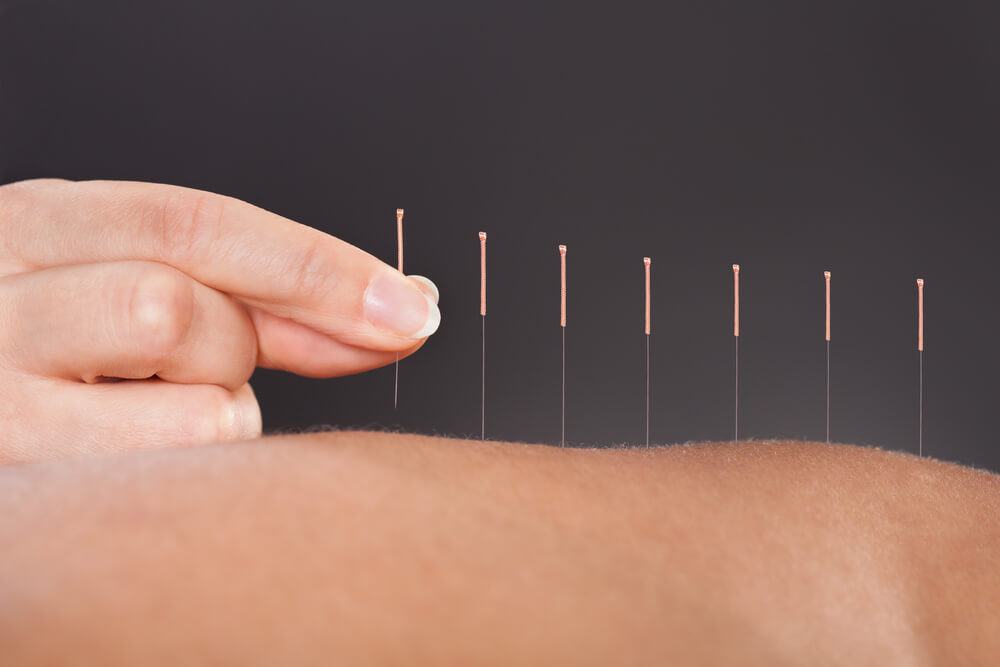 Acupuncture Points for Pregnancy