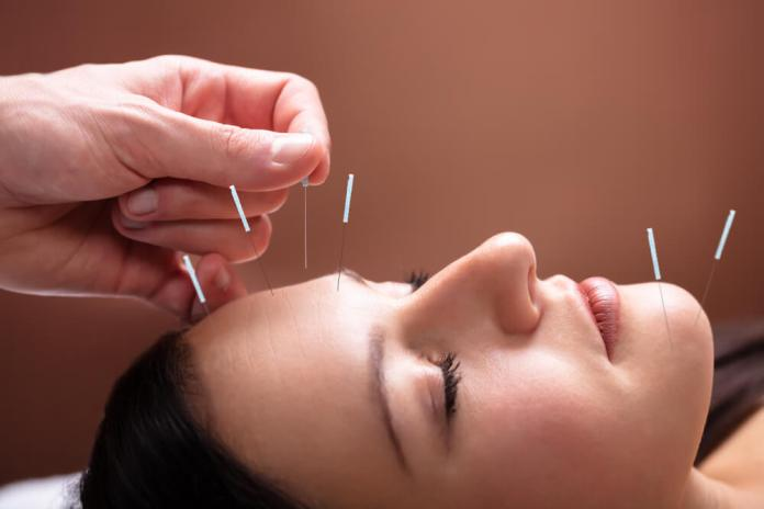 Acupuncture Treatment for Allergies