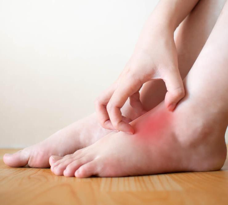 Epsom Salt for Infection