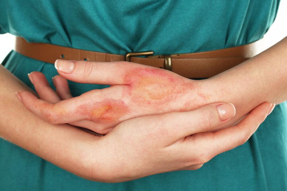 Infections can Epsom Salt Treat