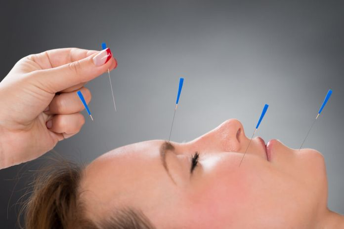 Prefer Acupuncture for Allergies