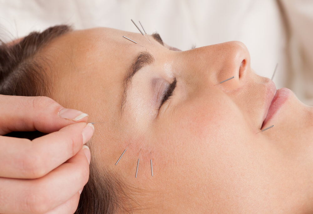 acupuncture treatment for acne