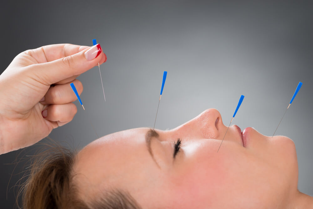Acupuncture on face