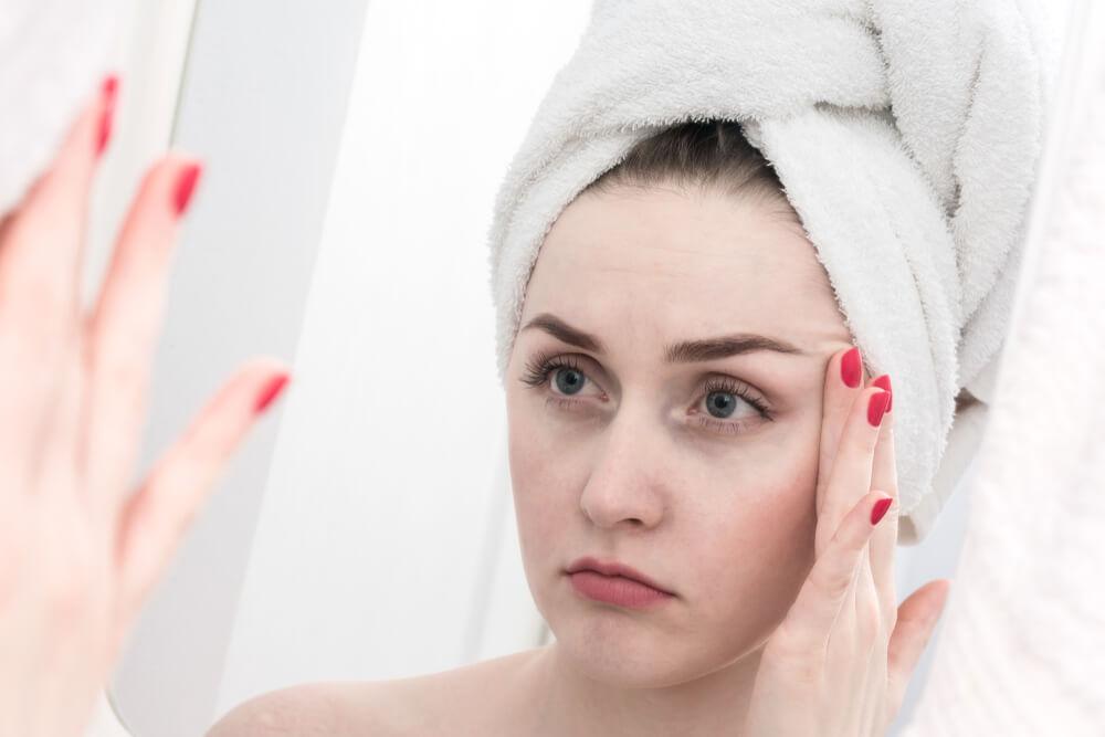 Women with Dry Skin