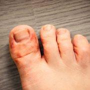 bleach soak for athlete's foot