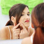 frankincense oil for acne
