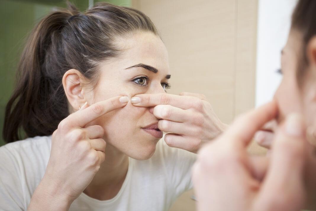 oregano oil for acne cysts