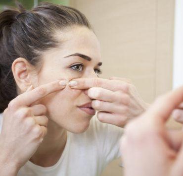 oregano oil for acne