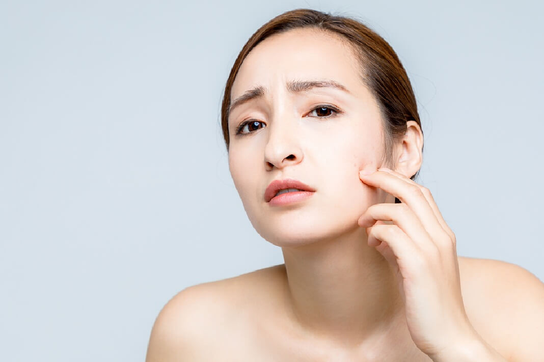 tamanu oil for acne