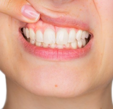 Essential Oils For Receding Gums