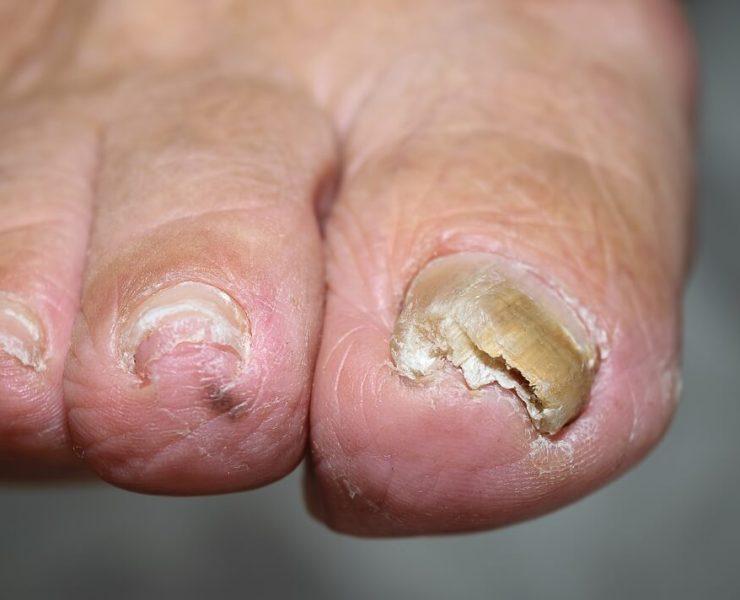 bleach for toenail fungus