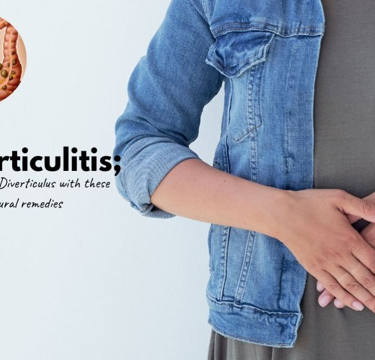 how to treat diverticulitis