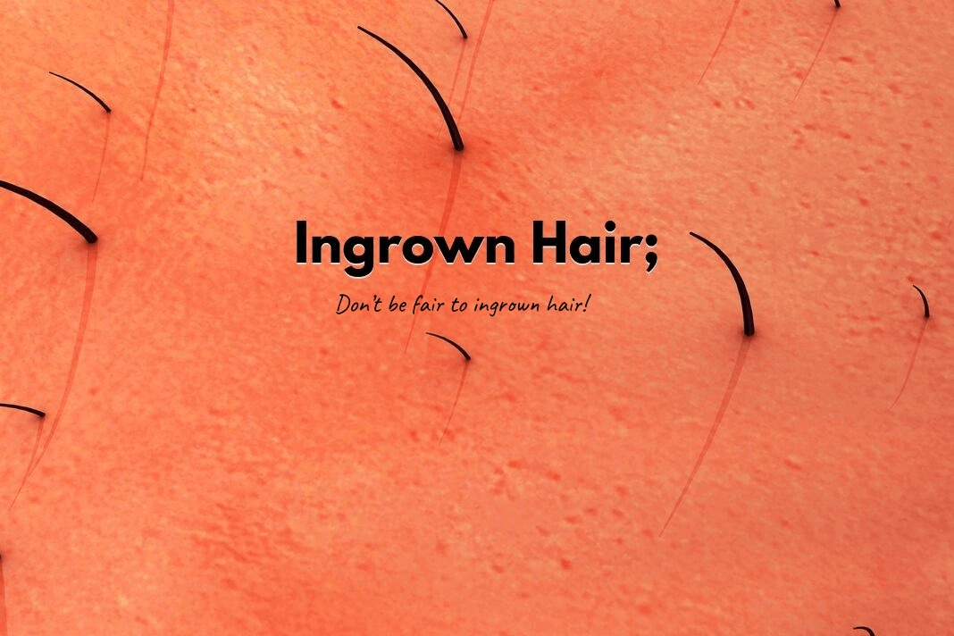 Ingrown Hair.