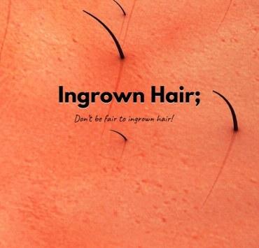 Ingrown Hair.