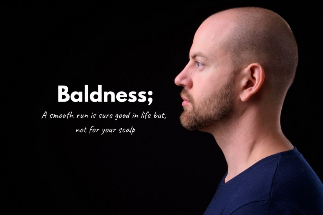 how to cure baldness