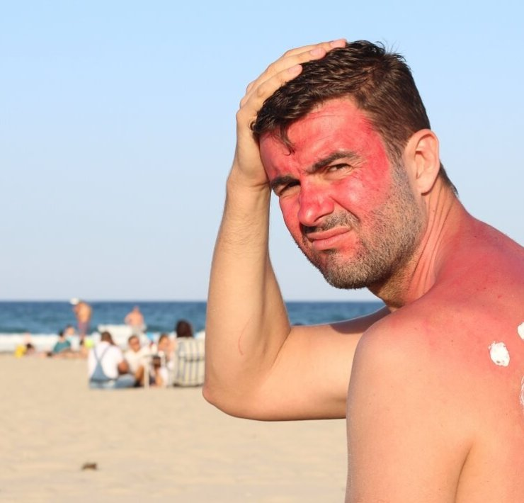white vinegar for sunburn