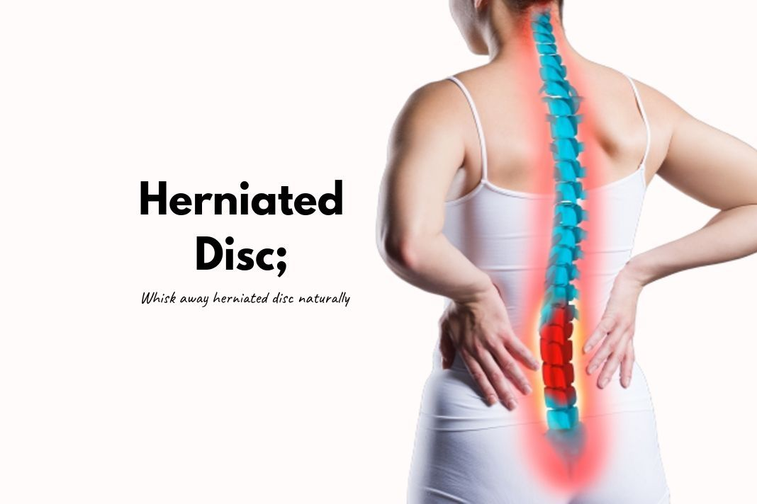 how to heal a herniated disc naturally