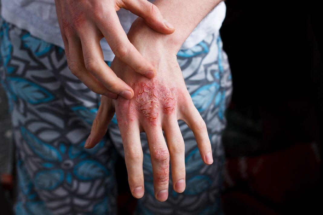 turmeric for eczema