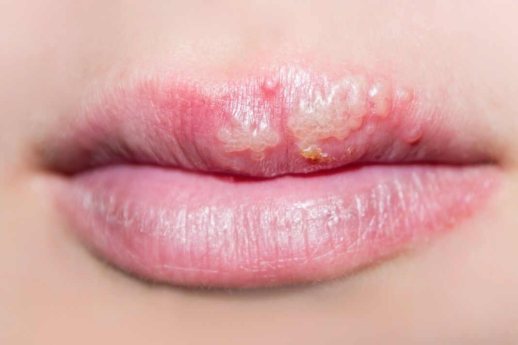 foods to avoid with herpes