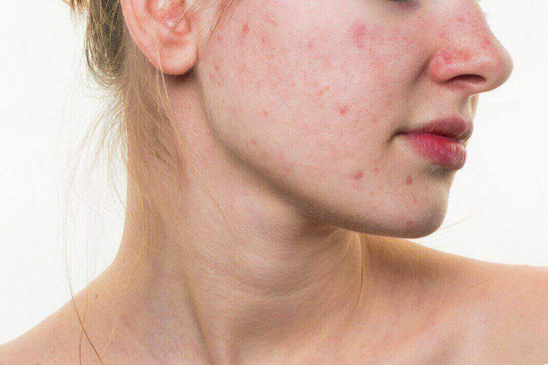 supplements for hormonal acne