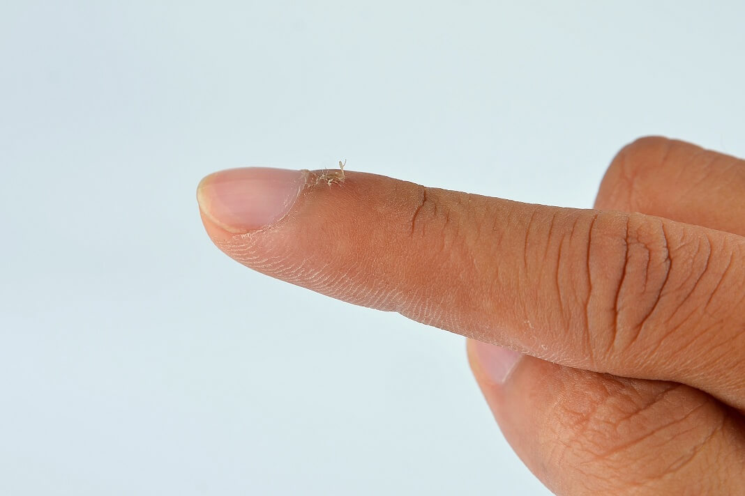 how to get rid of a hangnail