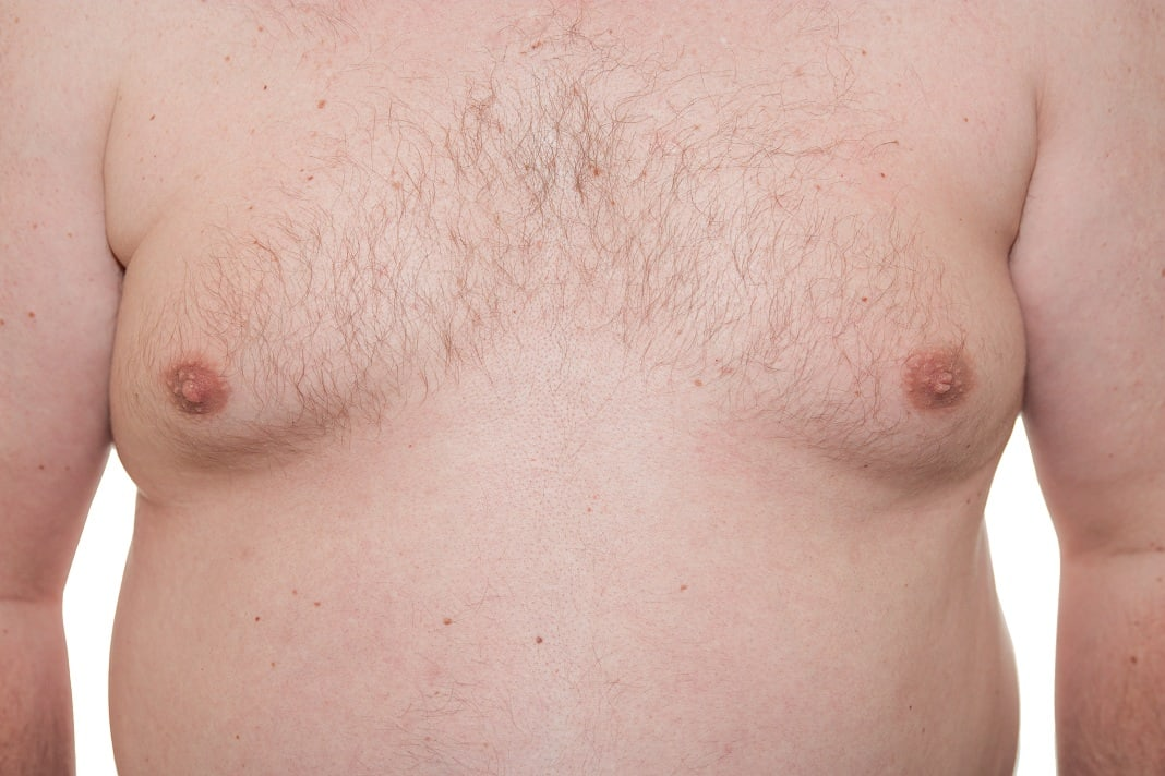 how to get rid of puffy nipples