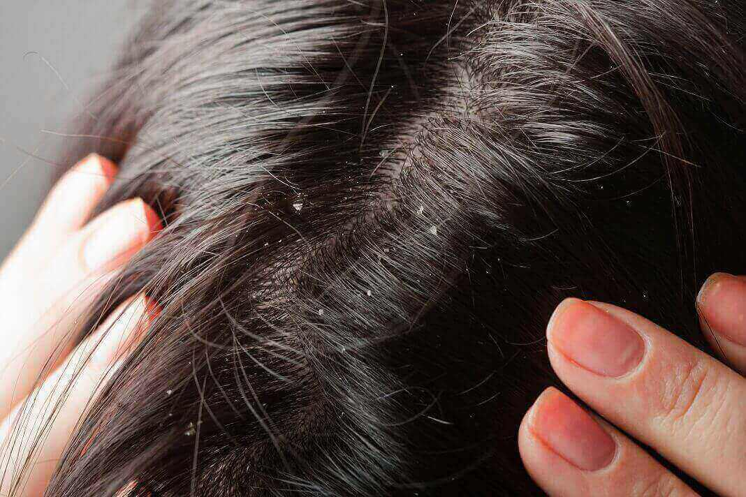 scabs on scalp