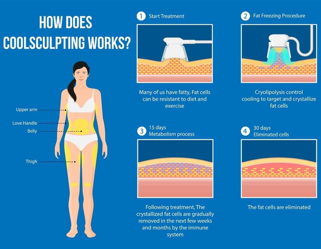 coolsculpting works