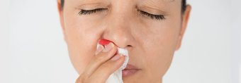 How to find a way to stop a bloody nose